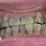 Răng nhiễm Tetracycline