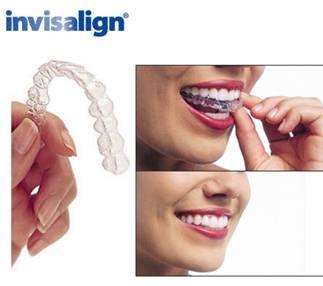 Những ưu điểm khi chỉnh nha bằng Invisalign?
