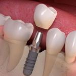 Bạn đang mất một hay nhiều răng?