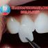 Răng sứ Veneer giải pháp thẩm mỹ răng tối ưu không cần mài răng