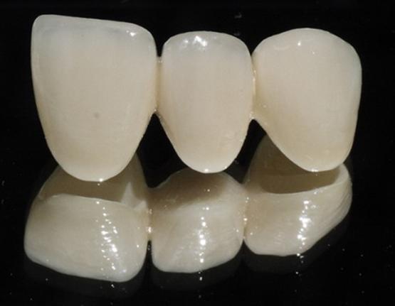Răng sứ zirconia sử dụng chất liệu trong khoa học vũ trụ